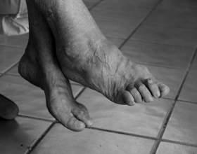 könyökízület hemarthrosis kezelése csípőízületek fájdalma csontritkulással