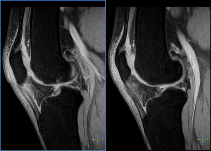 hogyan lehet enyhíteni a könyökízület fájdalmát fáj a csípőízület jobb oldalán