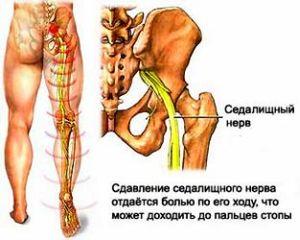 ízületi fájdalom túlmelegedéskor)