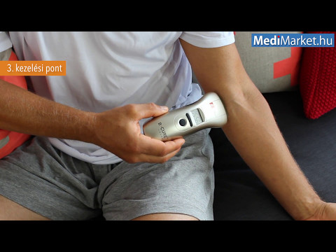 artrózis térd gép)