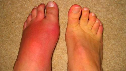 fájdalom láb nagy lábujj ízület)