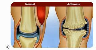 Osteoarthritis a térdízület (gonartrózis) kezelés 1, 2, 3 fok