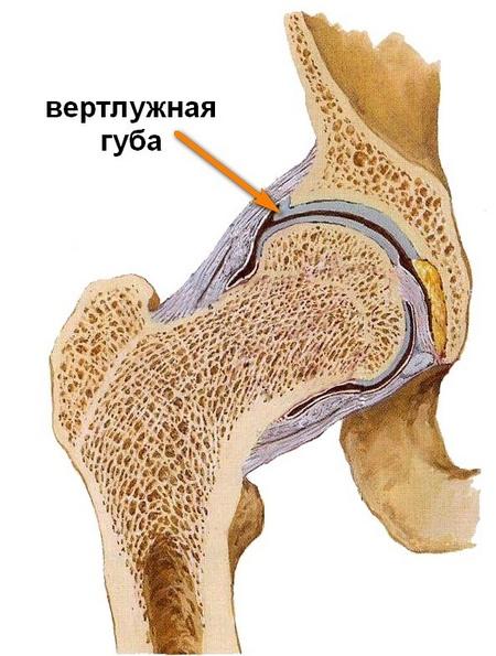 a csípőízület betegségei 3 fok)
