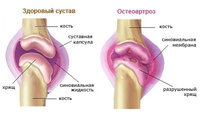 a térd artrózisa súlyosbodásának tünetei