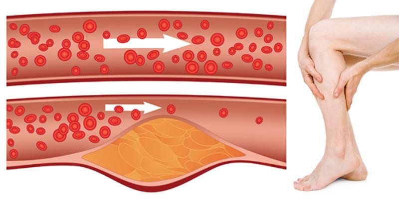 az első stádiumú kezelés artrózisa