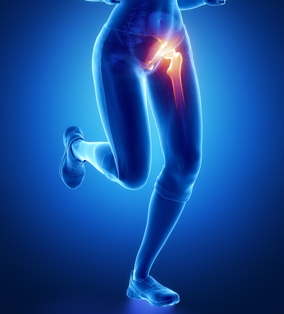 hogyan fejleszteni a csípőízületet egy sérülés után