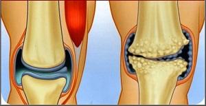 Gyómotorion.hu   Csípőproblémák - csípőízületi kopás, artrózis