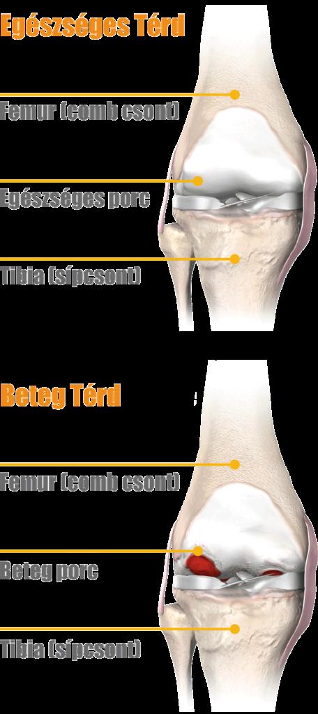artrózis és térdízületi kezelés