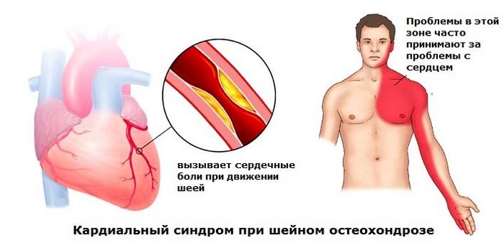 A nyaki gerinc oszteochondrosisából származó hatékony tabletták