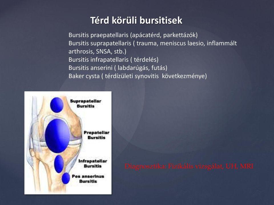 térdízület kezelés suprapatellaris synovitis