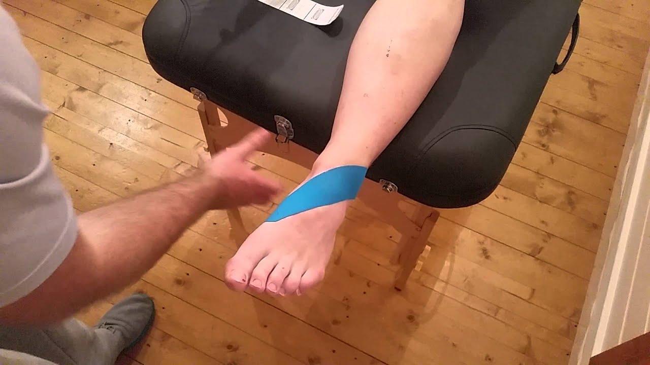 A bokasérülések kezelése tape-pel