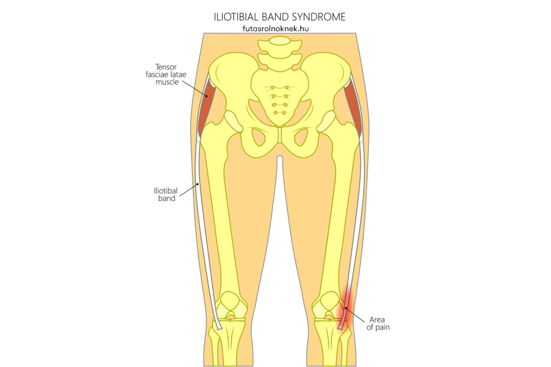 mit lehet tenni a lábak ízületeinek fájdalmával
