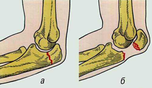 hogyan kezeljük a vállízület ragasztásának törését a lábujjak és a lábak ízületei fájnak