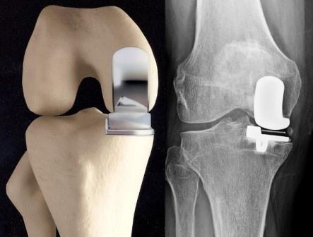 ásványvíz a térd artrózisához