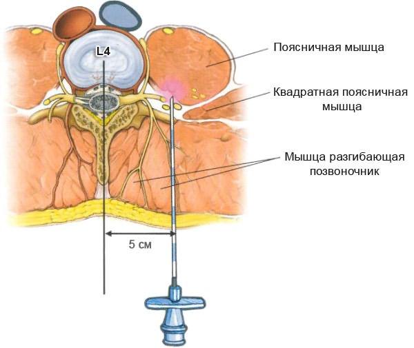 Ízületi gyulladás: mi segíthet a szteroidon kívül?
