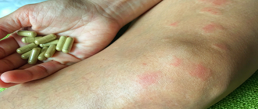 ízületi fájdalom lupus)