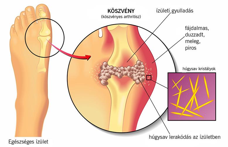 ízületi gyulladás a lábán és a nagy lábujján)
