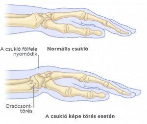 csuklóízület-törés kezelése)