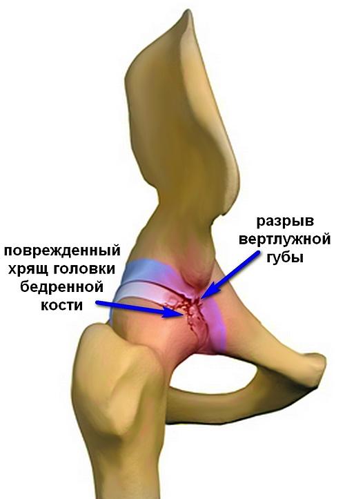 fájdalom a csípőízület belső részén)