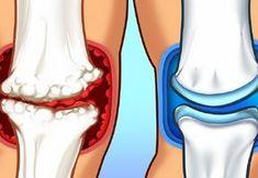 Vegye komolyan az izomfájdalmakat! - Dívány