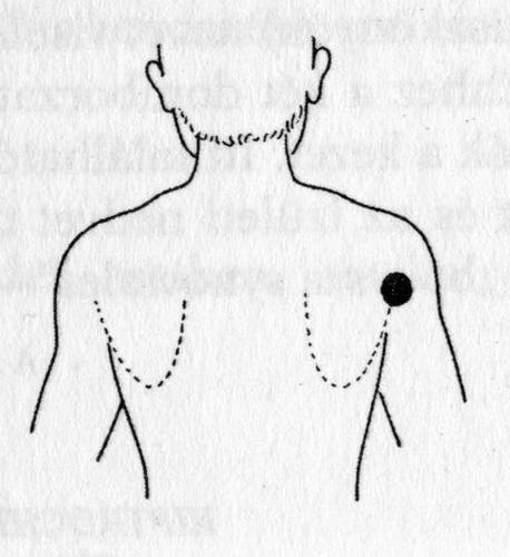 vállízületi fájdalom a kézdiagnosztika során