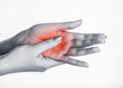 időszakos fájdalom a kezek ízületeiben)