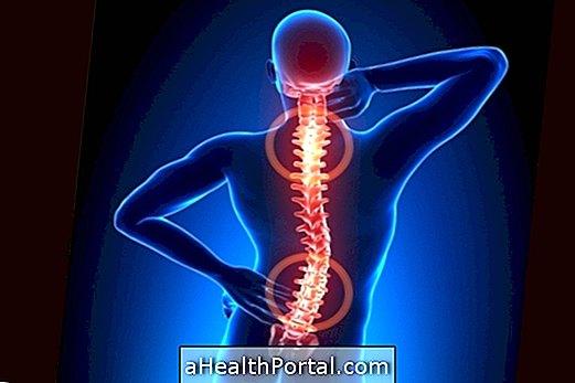 nyaki gerinc kezelés spondylarthrosis artrosis)