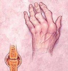 kúpok a kezén reumatoid artritisz)