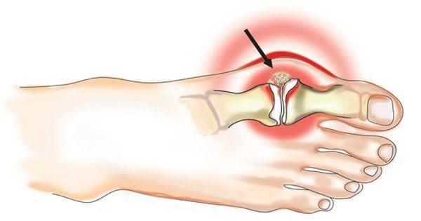 a bal láb ízületei fájnak)