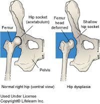 diszplázia ízületi kezelés)