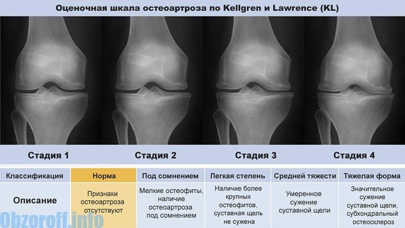 artrózis utolsó stádiumú kezelése