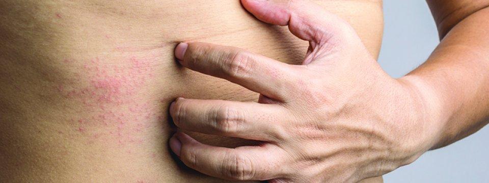 az ujjak kiütésének kezelése