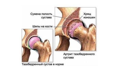 a térdcsont csontritkulása)