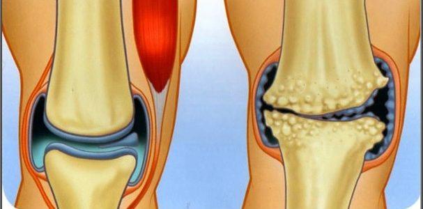 a térd legfontosabb artrózisáról