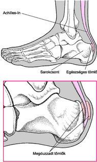 kömény a lábak ízületeinek fájdalma érdekében