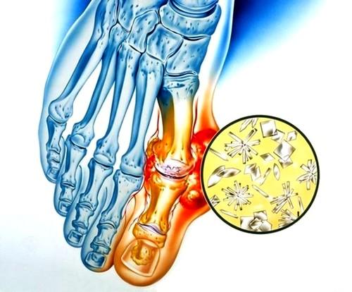 izomfájdalom a térdízület kezelésében sarok törés ízületi fájdalom