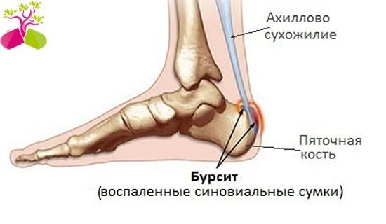 emberi bokabetegség