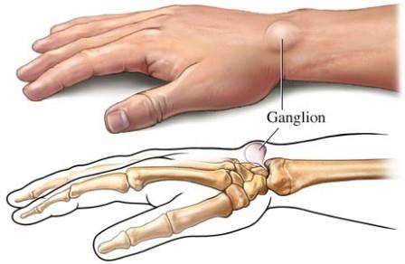 csípő coxarthrosis