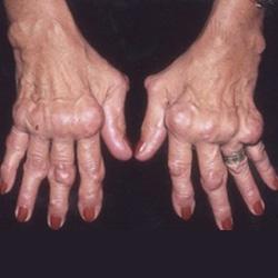 ízületi betegségek megnyilvánulása)