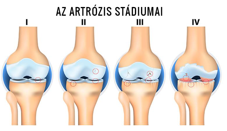 a térd lézeres kezelés artrózisa