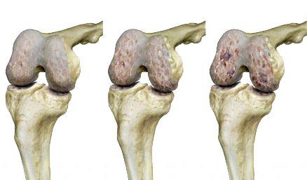 artrózis gyakorlati kezelése