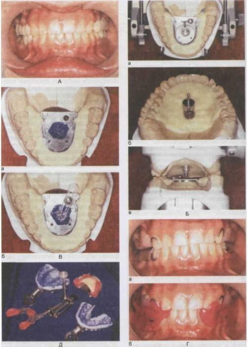 Dorsopathia - mi az, a betegség diagnózisa. A gerinc dorsopathia kezelése - Kyphosis July