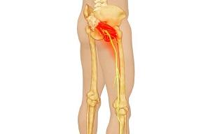 izomízületek kenőcs ízületi gyógymód arthrocelsus