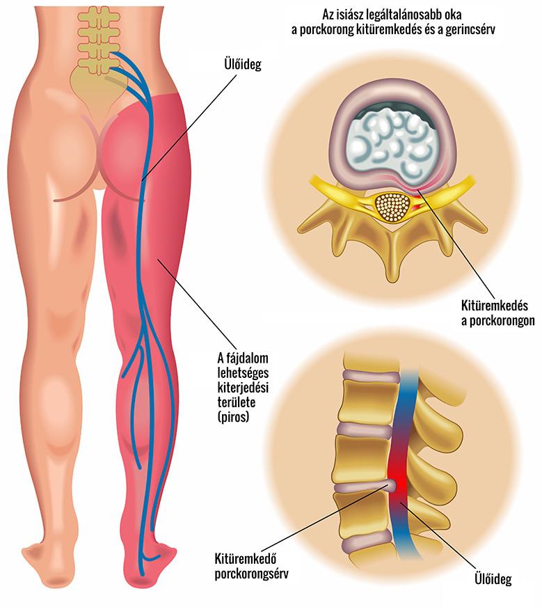 csípőfájás az egész lábon
