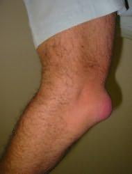 könyökízület epicondylitis kezelésére szolgáló tabletták)