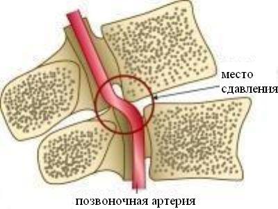 méhnyakos osteochondrozis kezelése