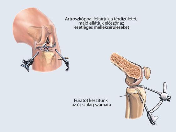 a térd tendinosis kezelése