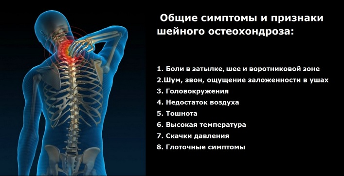 Mi a legjobb kenőcs a nyaki osteochondrosis számára?