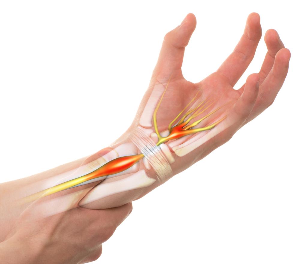 gyógyszer térd kenésére a bal kéz duzzanata fáj az ízületeket