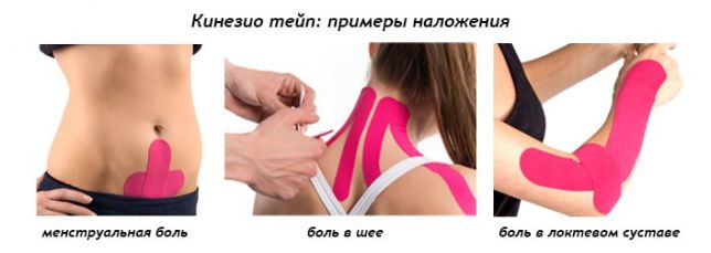 térdízület ragasztásainak ligamentózisa)